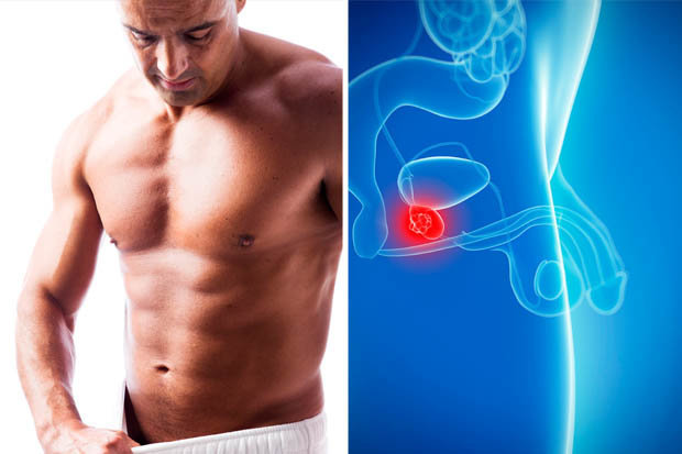 prostate cancer treatment sexual side effects